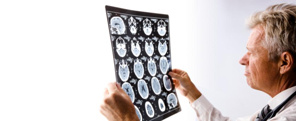 Assicurazione neurologo Preventivo Online